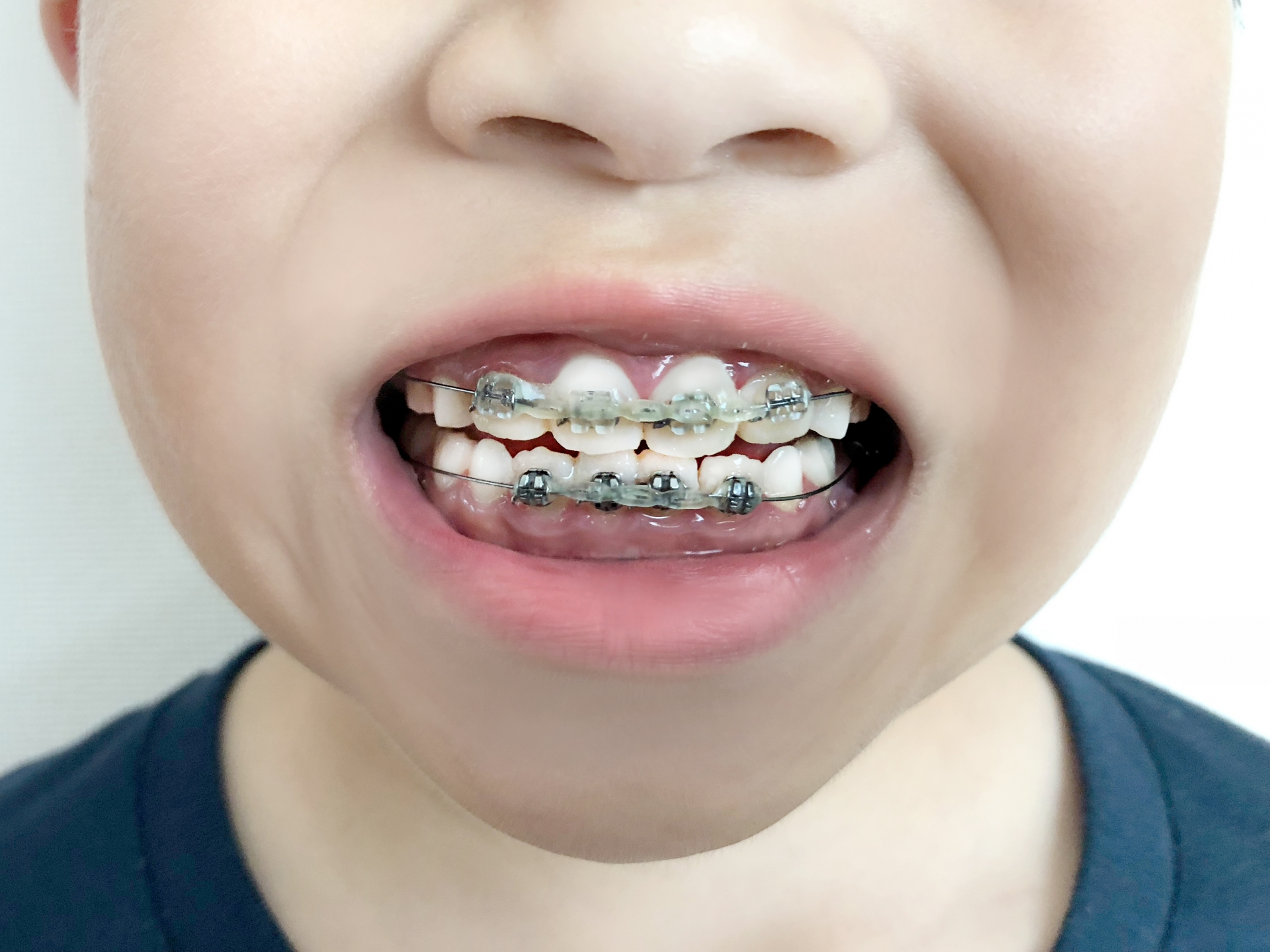 子供の歯並びを矯正したい!小児矯正の費用と仕組みを調べてみた!