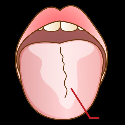 舌の汚れ(舌苔)をなくしたい!舌の汚れを除去する方法について調べてみた