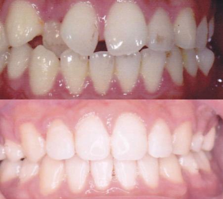 【体験談】経験者が歯科矯正について徹底的に紹介します
