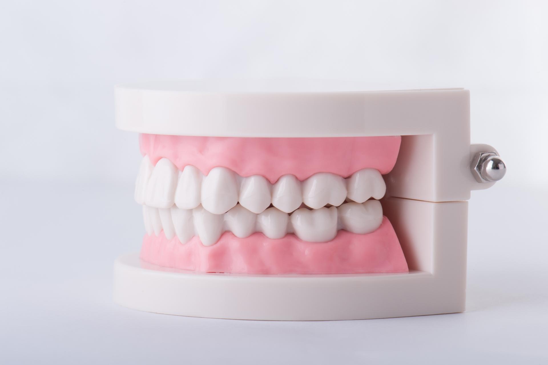 神経が無い歯、失活歯を白くするホワイトニング方法とは